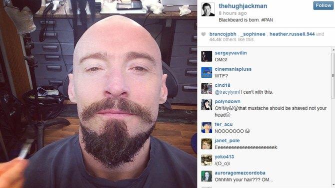 hugh_jackman_bald