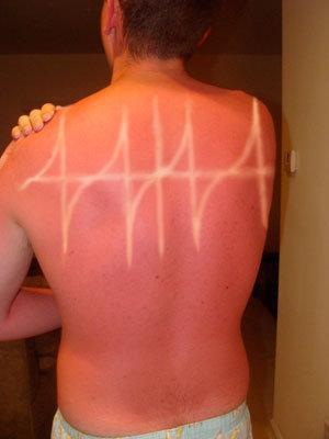 quemadura sol